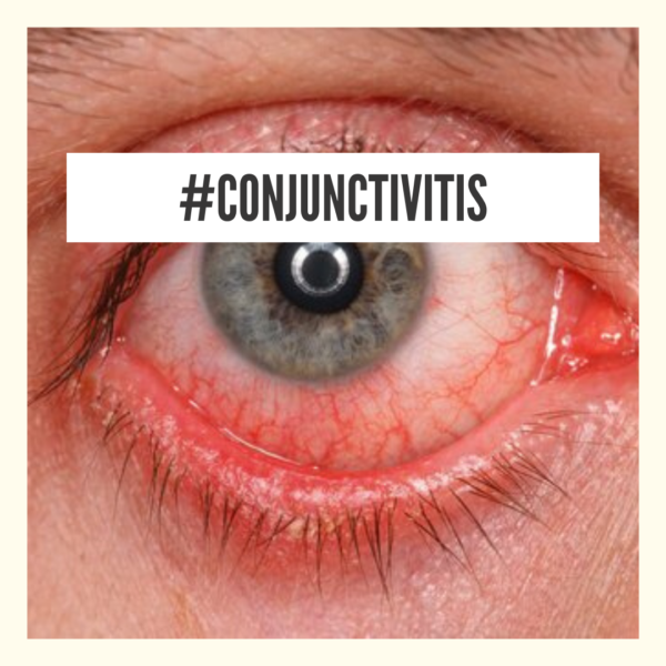 natural home remedy for conjunctivitis