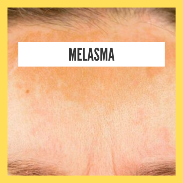 Natural Home Remedy For Melasma During Pregnancy